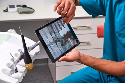 African male dentist explaining x-ray to the patient sitting in the chair. Close up shot Stock Photo